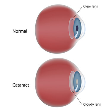 Chart showing a normal eye vs one with a cataract