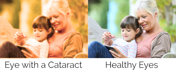Chart showing what it's like to see with a cataract