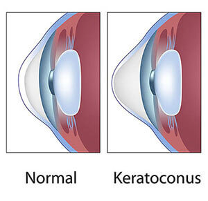 Chart showing Keratoconus in the eye