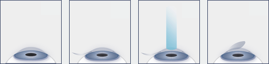 Chart showing the LASIK procedure