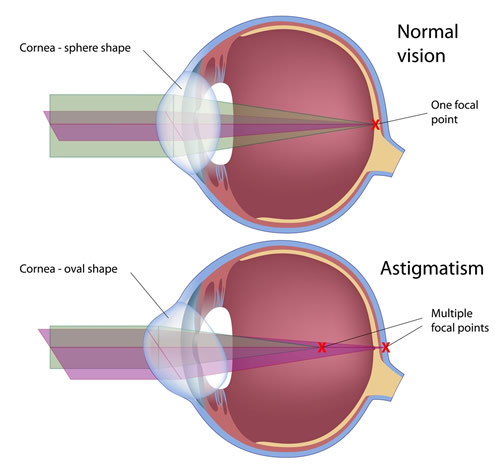 Chart Showing an Eye With Astigmatism