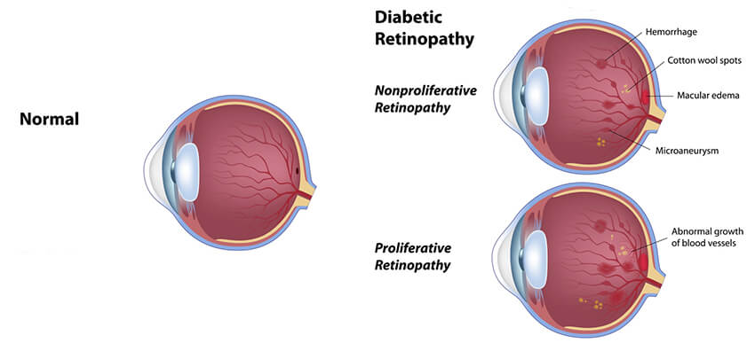 Chart Showing an Eye With Diabetic Retinopathy