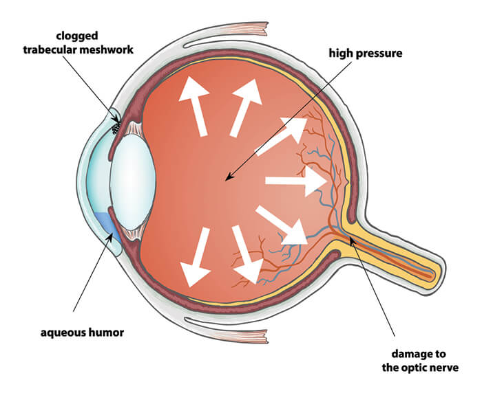 Chart showing what glaucoma does to the eye