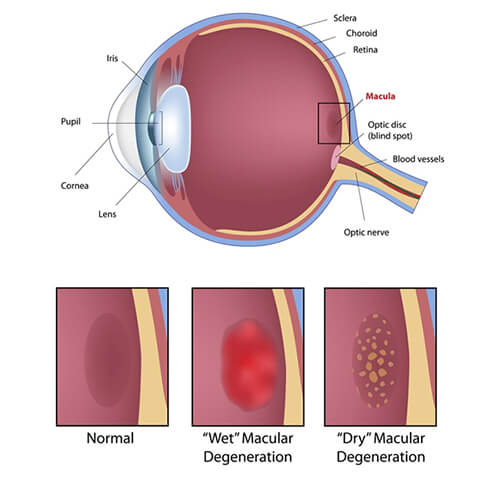 Chart Showing Macular Degeneration