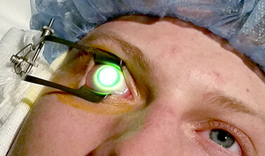 Corneal Crosslinking Patient Having Eye illuminated